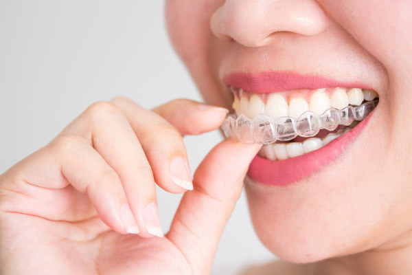 Durchsichtige Zahnspange Uri - Invisalign Uri