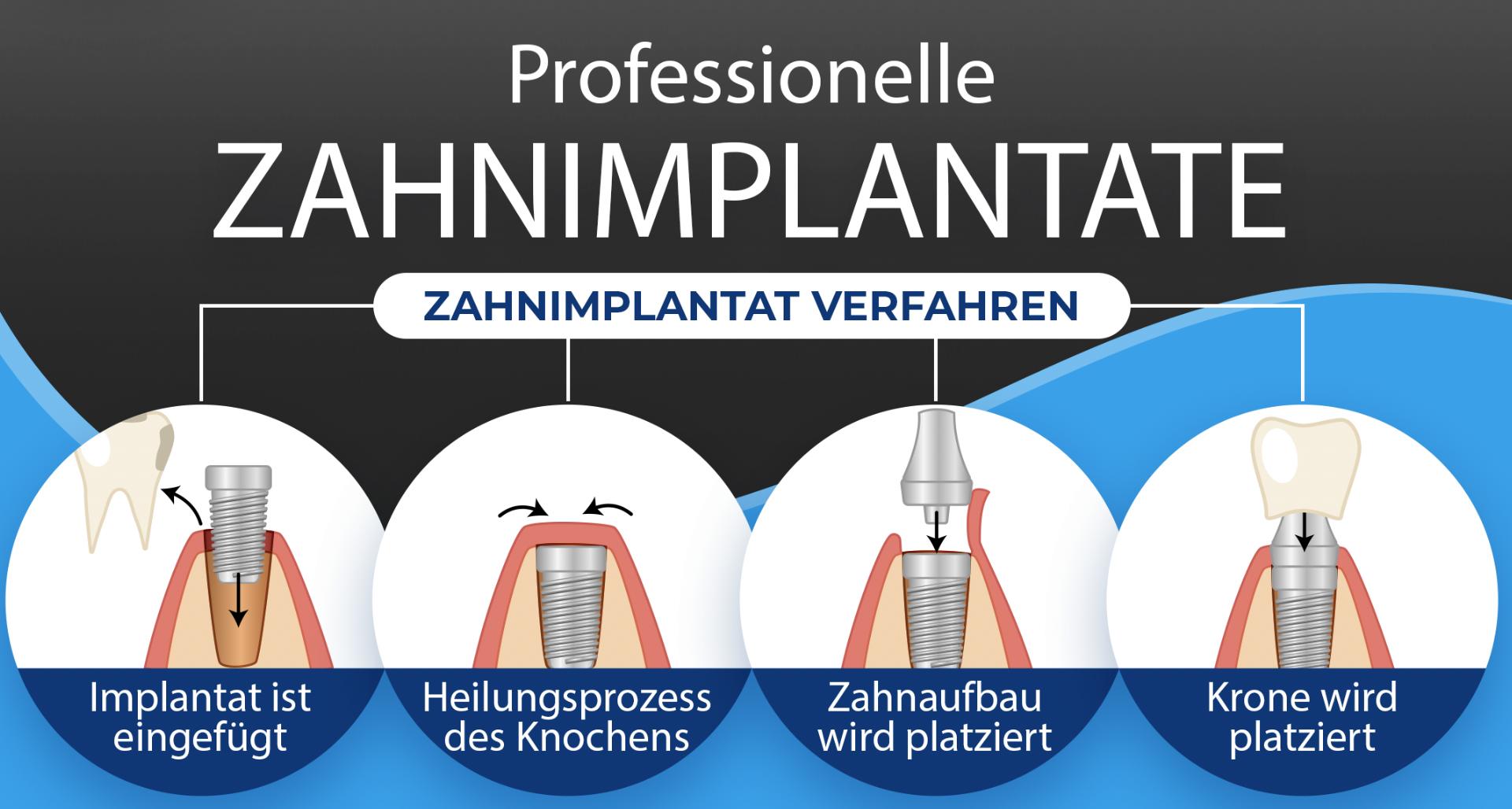 Professionelle Zahnimplantate